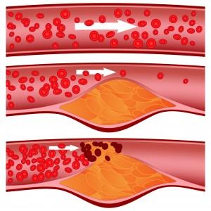 colesterolo-1