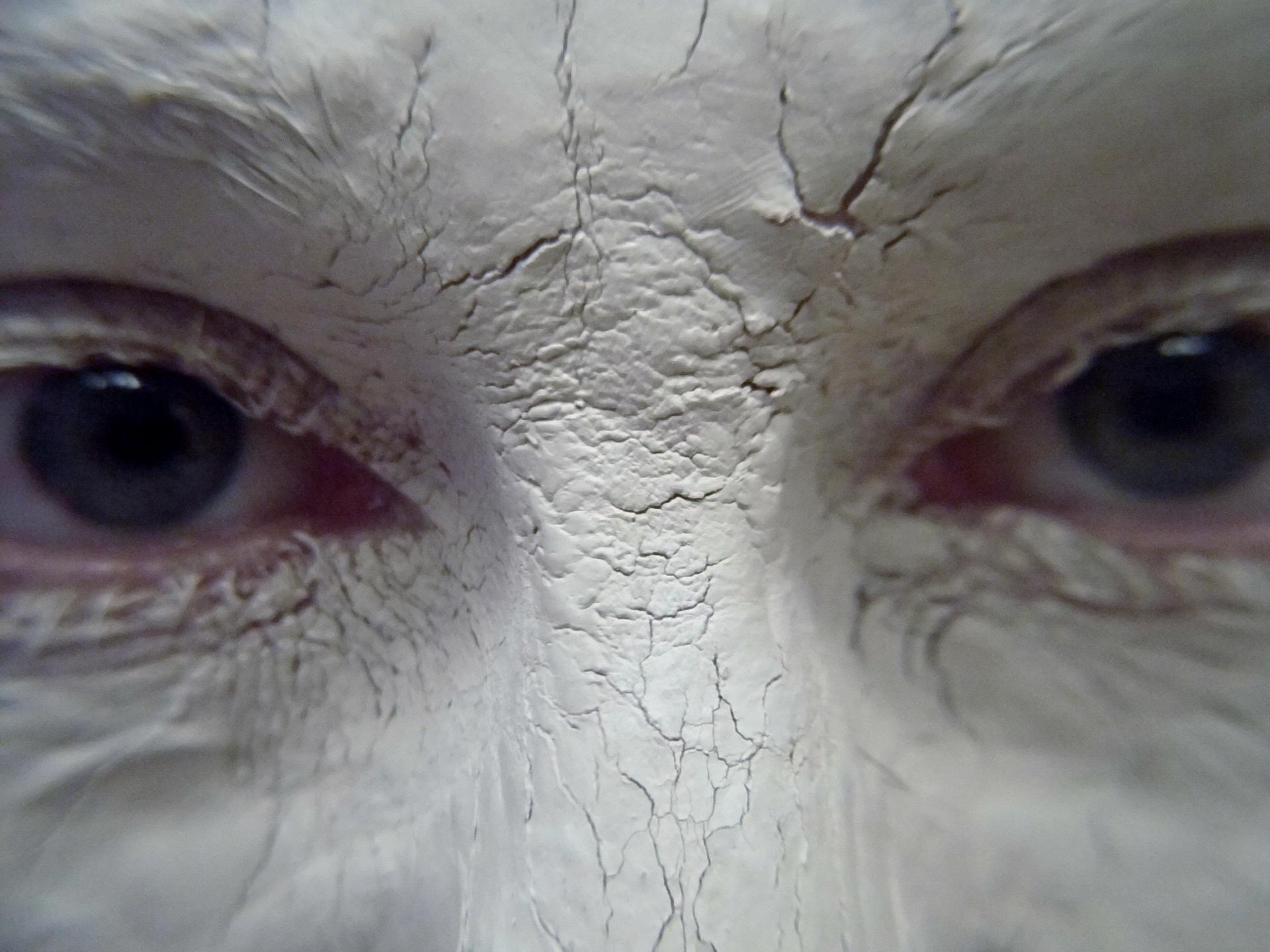 Come curare leruzione di acne su una faccia alladulto